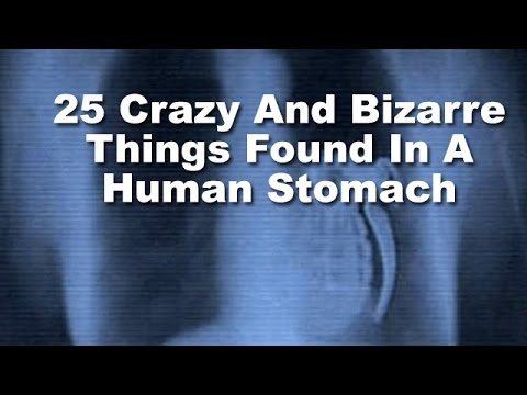 25 Crazy And Bizarre Things Found In A Human Stomach