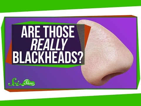 Are Those Really Blackheads?