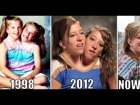 Interesting Things About Famous Conjoined Twins Abby And Brittany Hensel 7tv Net