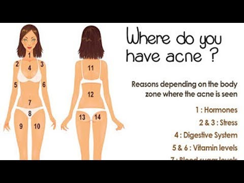 Location Of Your Acne Could Explain Why You Broke Out
