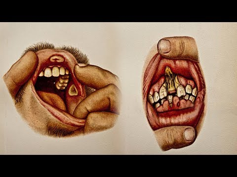 Strange Facts You Didn't Know About Your Own Mouth
