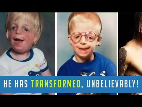 Child Abandoned By His Parents For Being Ugly But Persistence Changed His Life