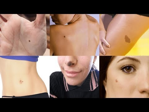 What The Position Of Your Birthmark SAYS About You