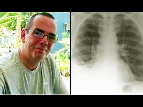 Surgeons spot cancer on man's lung: cut's him open but don't believe what they see