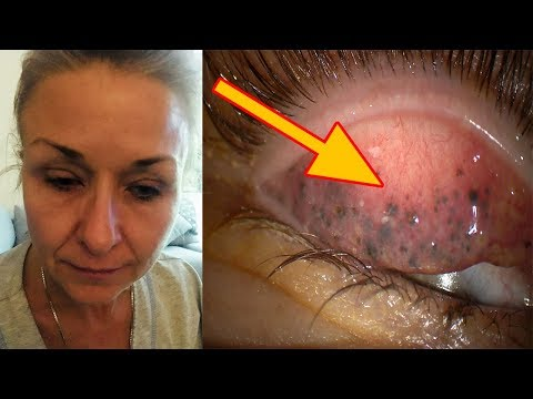 This Woman Wore Mascara to Bed Every Night for 25 Years and What Her Doctors Found Under Her Eyelid