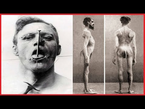 25 HISTORICAL PHOTOS OF FREAK SHOWS SHOWING THE DARK SIDE OF THE CIRCUS