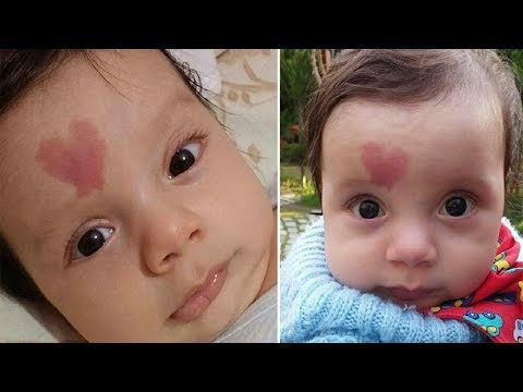 Baby with a Unique Birthmark Is Charming the Whole World