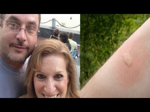 Husband of 26 Years Dies From This Common Insect Bite