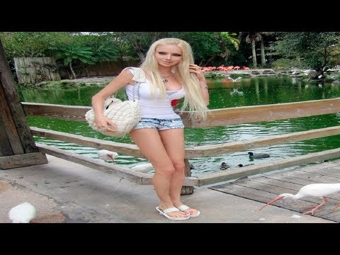 Remember 'The Human Barbie' Well, You Should See Her Now!